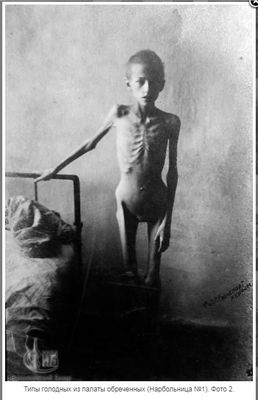 Non-Holodomor: An emaciated child stands for the photographer by her hospital bed in Kherson, Ukraine