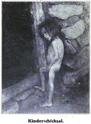 Non-Holodomor: Young girl, unclothed to show her swollen abdomen and skeletal limbs, stands near the doorway to her house in Russia