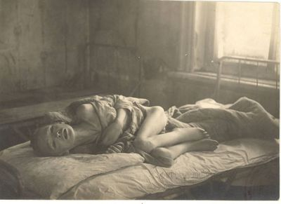 Non-Holodomor: An emaciated child lies wracked with pain in a medical facility set up by  international relief agencies working in Samara, Russia